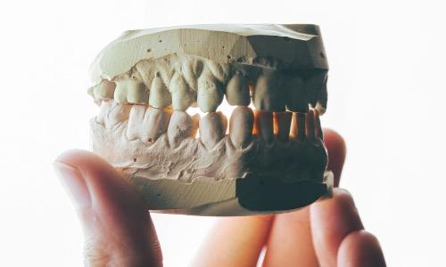 【夢占い】歯が抜ける夢は変化の兆し!1本だけ、全部、虫歯の意味